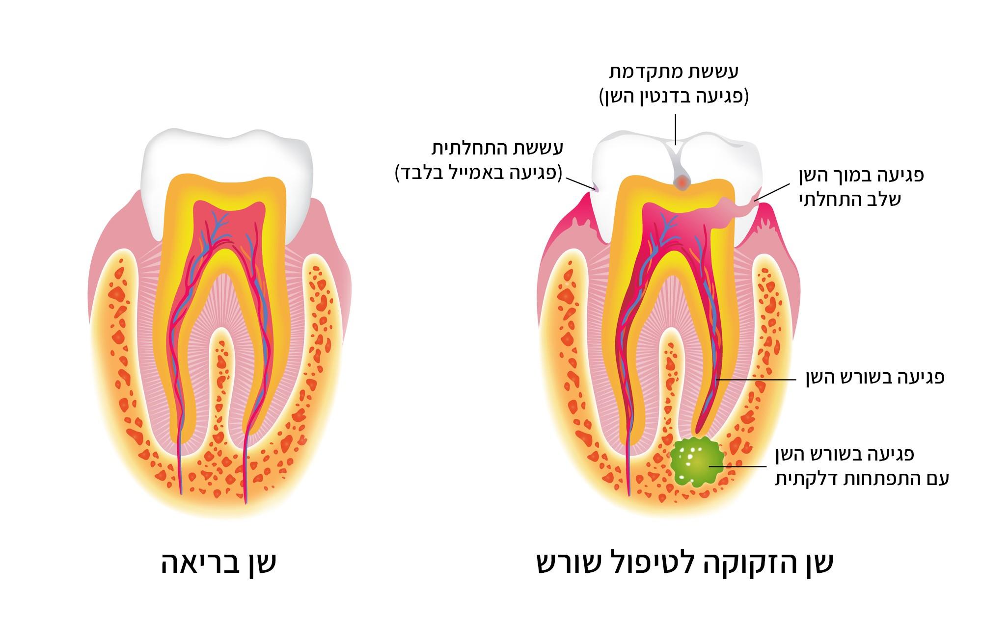 איור שן בריאה מול איור שן הזקוקה לטיפול שורש