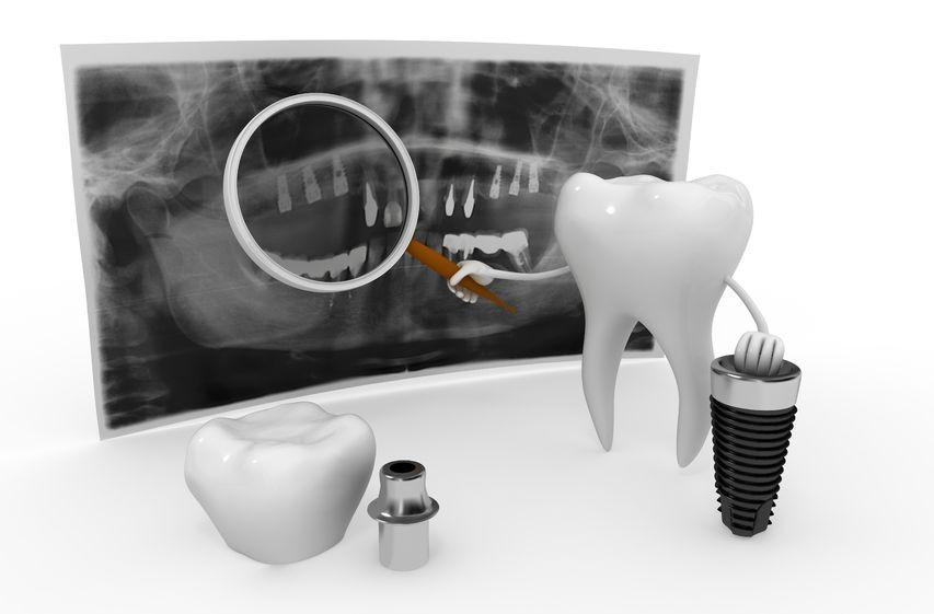 פתרונות למחוסרי עצם